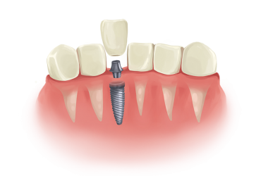 implant dentaire
